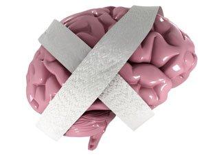 Alzheimer Image