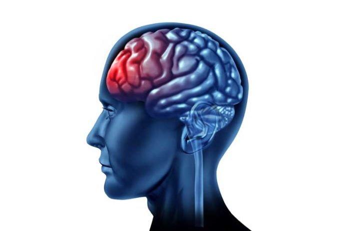 medical-history-brain
