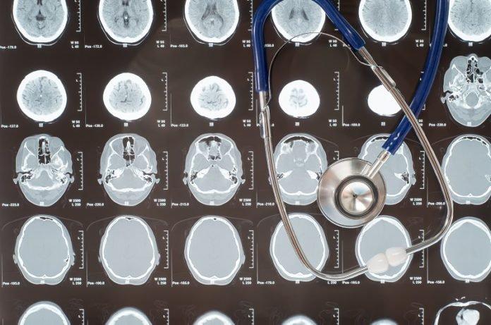 Alzheimer's progression