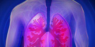 diagnose tuberculosis