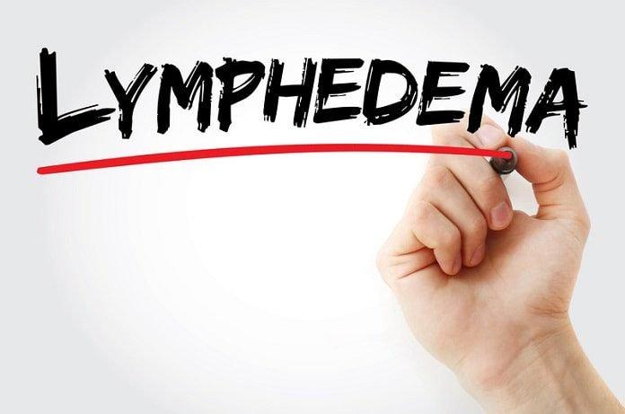 treat lymphedema