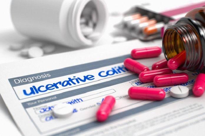 Medicines for ulcerative colitis