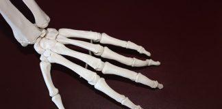 anakinra for rheumatoid arthritis