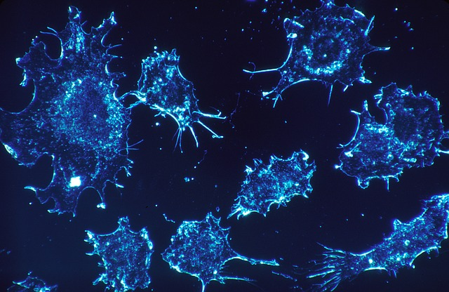 colorectal tumous in immune overdrive