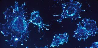the spread of breast cancer cells