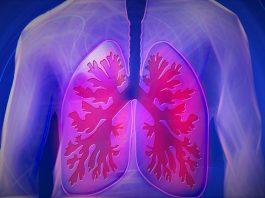 vaping lung illness