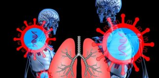 COVID-19 respiratory disease