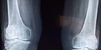 knee bone x-ray image